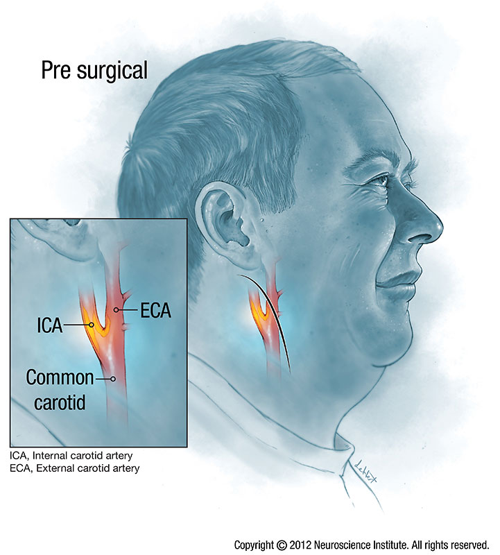 carotid artery disease Carotid artery disease is a disease in which a waxy substance called plaque builds up inside the carotid arteries.