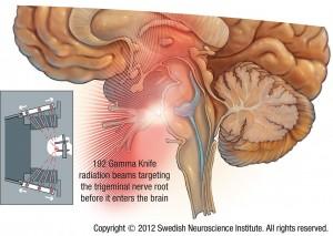 Trigeminal-Neuralgia-GK