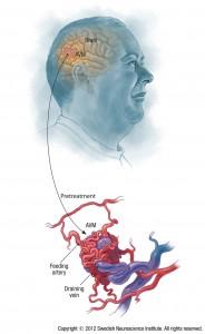 Pre-treatment Arteriovenous Malformation